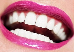 For beautiful white teeth is not difficult